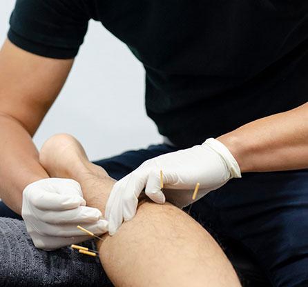 MSK Dry Needling - Narellan physiotherapist